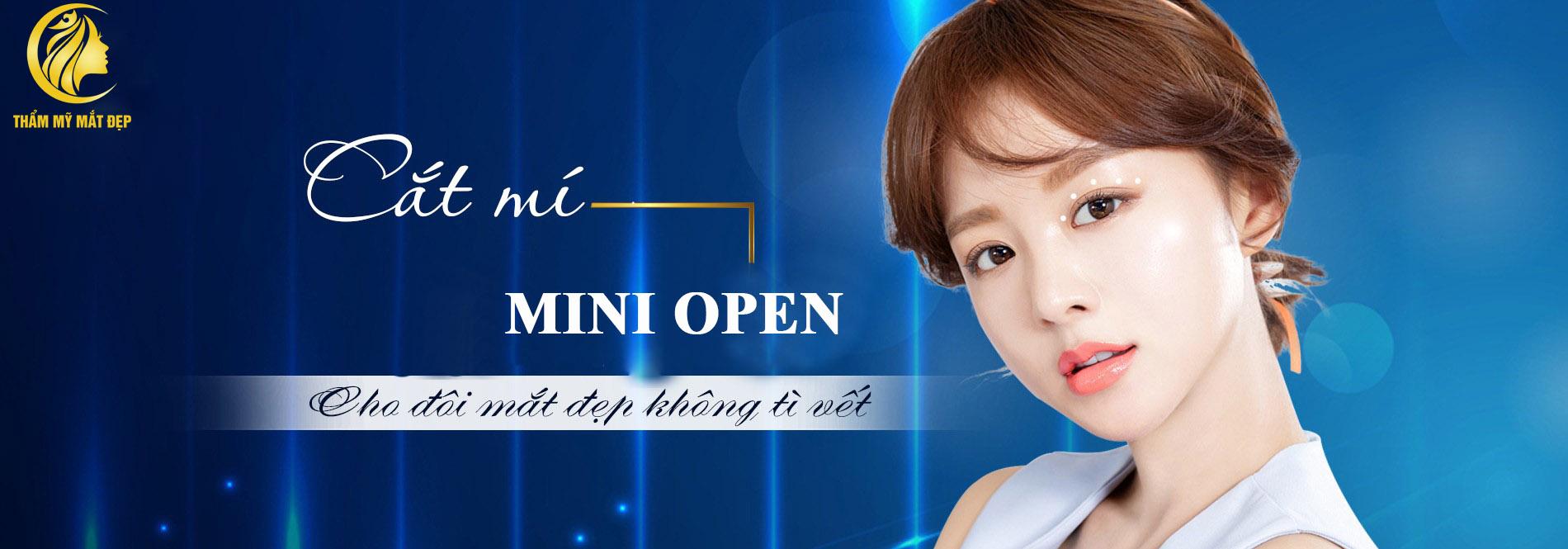 cat-mi-mini-open
